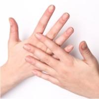 обветренные руки, лечение